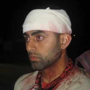 Mohammed E-Housiny shown wounded while performing jihad wth Viva Palestina.